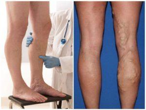 Электрохимия — в ногу с прогрессом